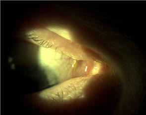Matheson Optometrists - Atlas of eye conditions page 1